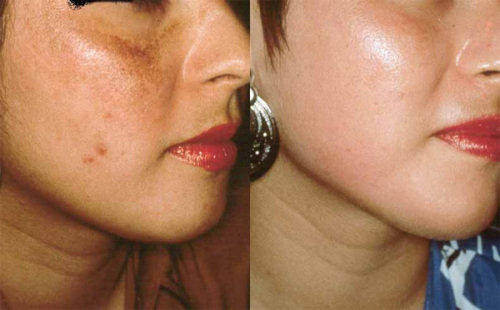 pigmentation-reduction-microdermabrasion